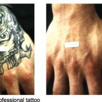 TattooStar-Entfernung-vorher-nachher